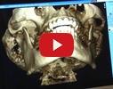 Dr. Butkēvičas zobārstniecības prakse, SIA video